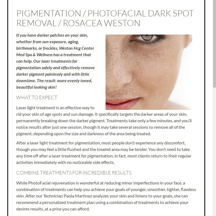 Mix · Pigmentation, Photofacial Dark Spot Removal, Rosacea